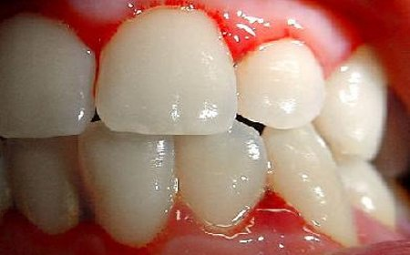 Gums of Steel: The Signs of Early Stage Gum Disease-Gingivitis