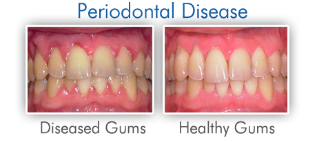 The Signs of Advanced Stage Gum Disease-Periodontitis
